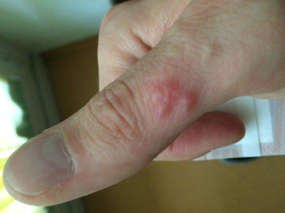 Comme le psoriasis de la photo des mains a lair