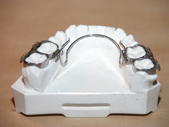 Comment se passe l 39 arrachage d 39 une dent definitive for Bagues dentaires interieur