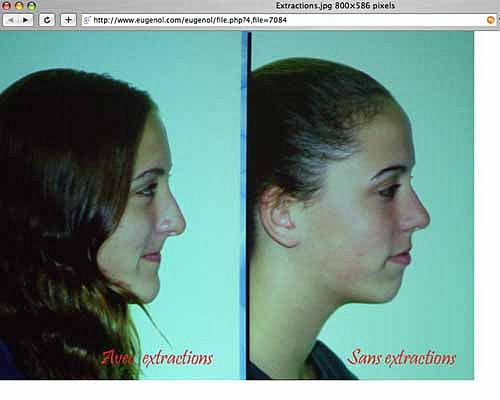 Profil 2 vraies jumelles 1 avec extraction de 4 prémolaires