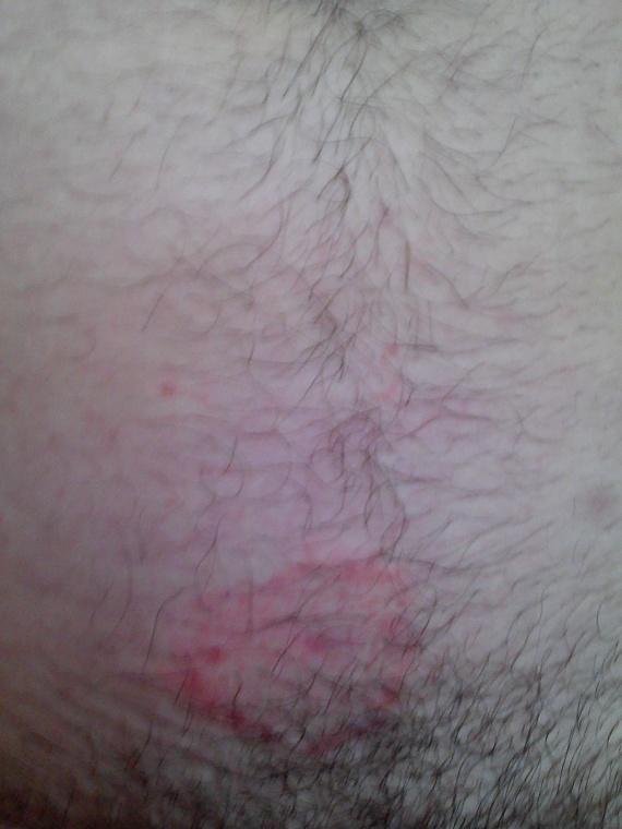 plaque entre jambes acn psoriasis et probl mes de peau forum sant. Black Bedroom Furniture Sets. Home Design Ideas