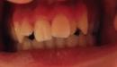 dents10