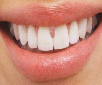 Problème Gencive Enflée Et Appareil Dentaire Problèmes Dentaires