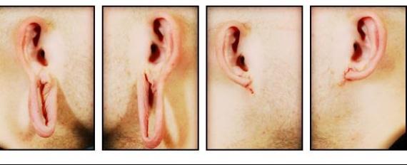 earlobe_reconstruction1