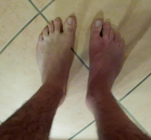 mauvaise circulation sanguine pied bleu