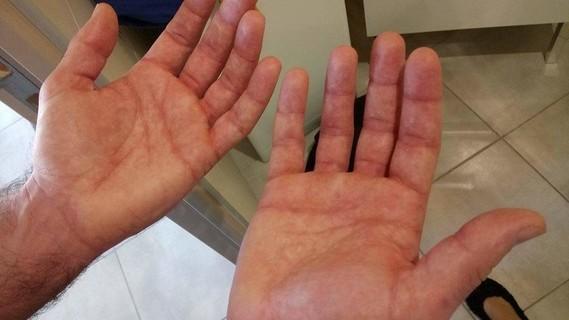 mains marbrees