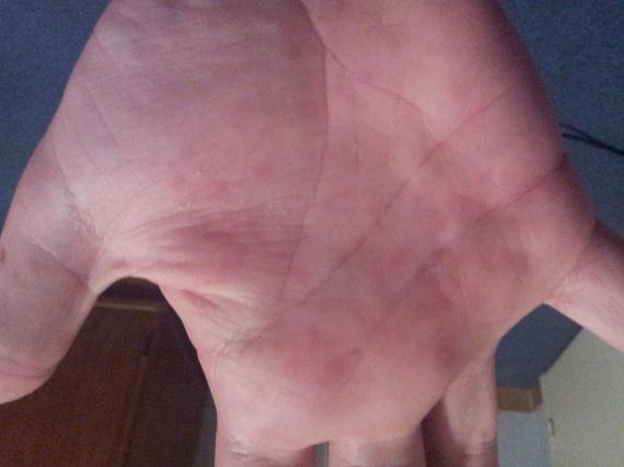 Linflammation des articulations des doigts des mains et le psoriasis