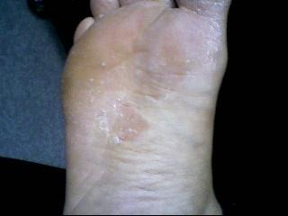 mon pied me gratte