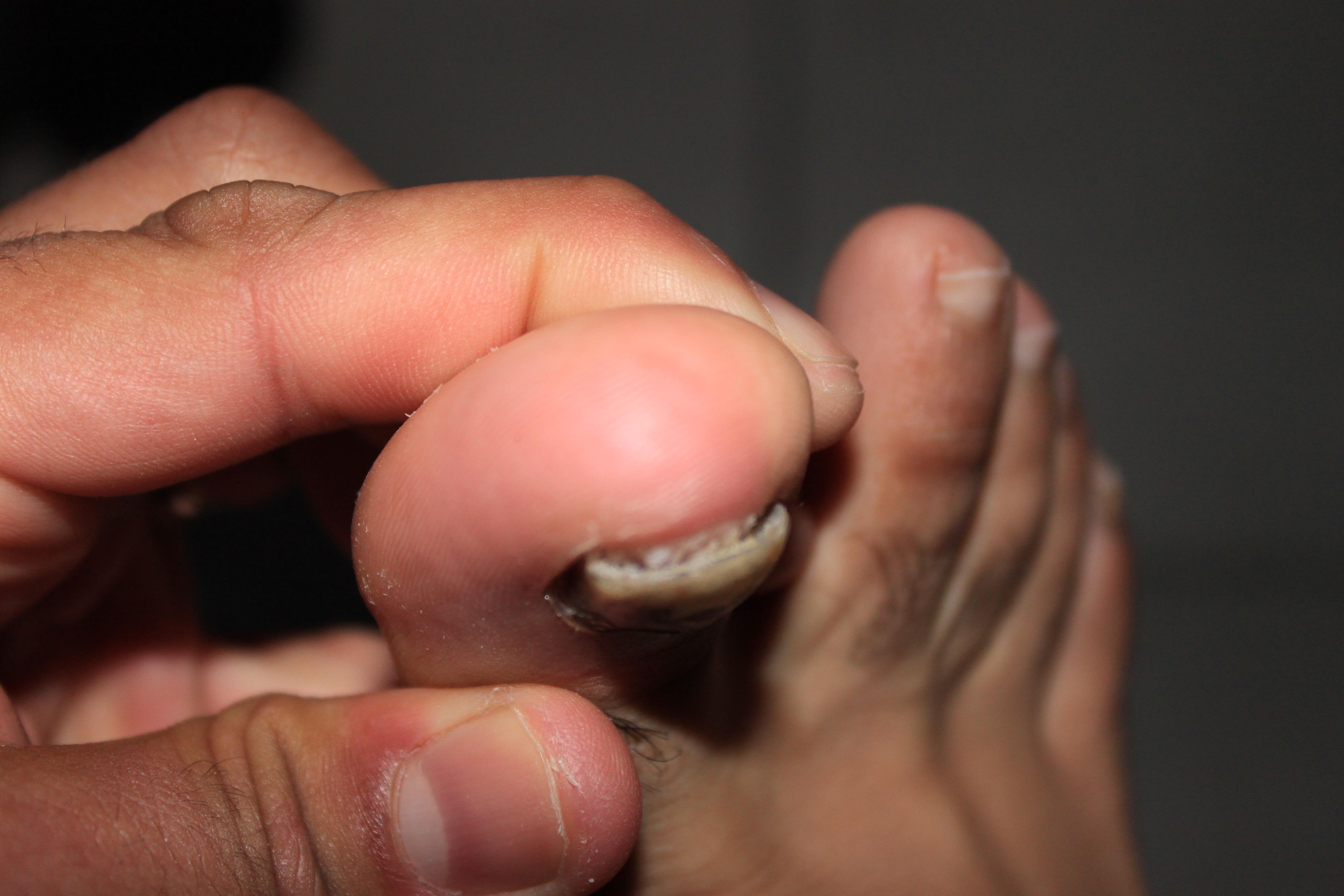champignons sous les ongles de pieds
