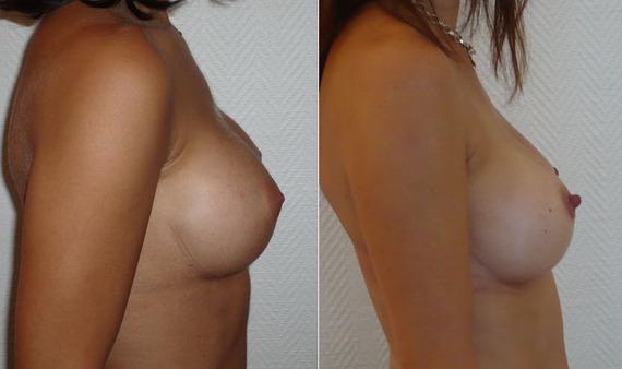 Implant-rond-versus-implant-anatomique