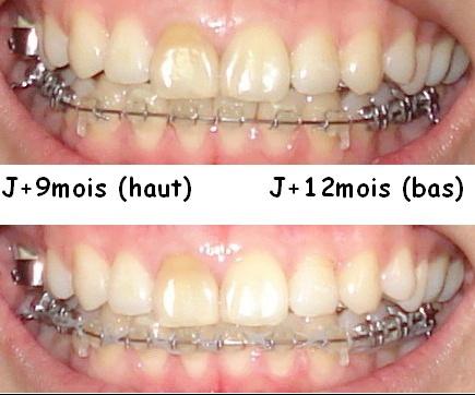 Mon Traitement D Orthodontie Lingual Ceramique 19 04 07 Photos