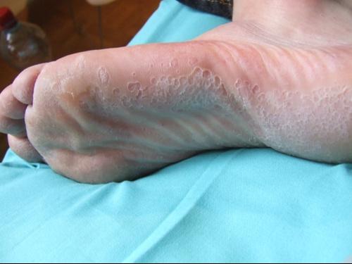 La crème pour le pied des pieds du microorganisme végétal