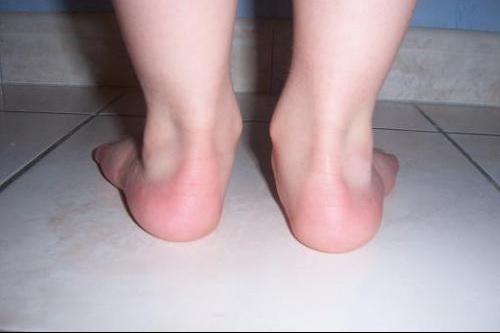 pieds nathan