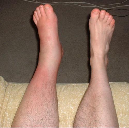 phlebite pied gauche