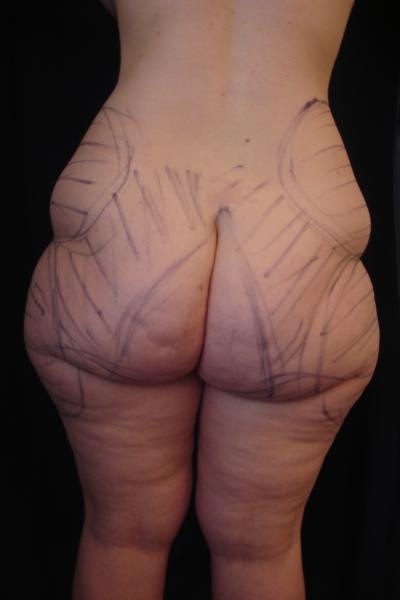 BODYLIFT après perte importante de poids - Page   2 - Chirurgie ... df0f7216640