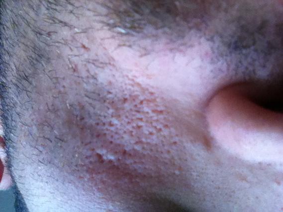 pores dilat s acn psoriasis et probl mes de peau forum sant. Black Bedroom Furniture Sets. Home Design Ideas