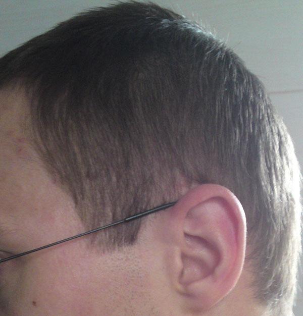 Perte Cheveux Sur Les Cotes Repousse Possible Ou Ont Rase