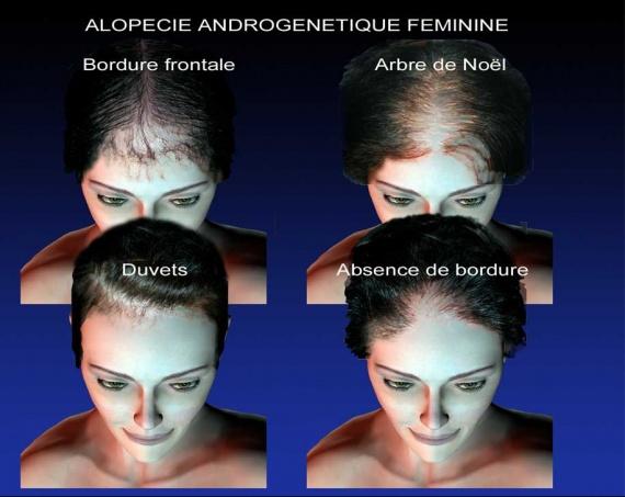 2-alopecies_fem-W