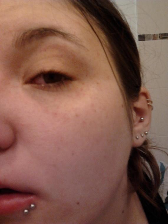 La thérapeutique laser des oeil odessa