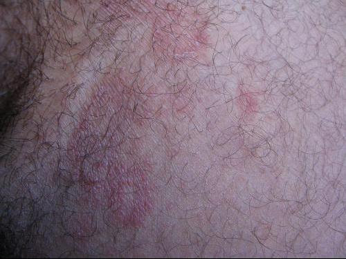 plaque rouge transpiration