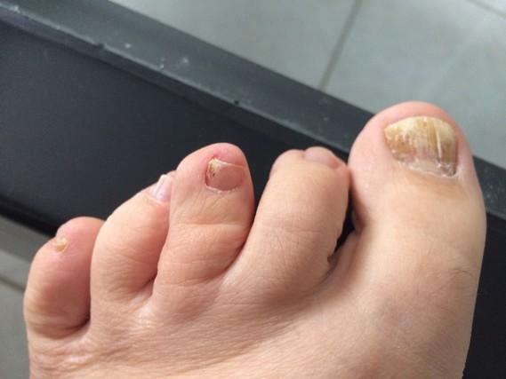 Le meilleur moyen du microorganisme végétal du pied sur les pieds