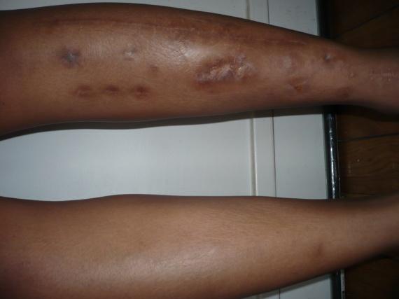 Conseil cicatrice fonc es sur peau m tisse peaux noires - Tatouage blanc sur peau noir ...