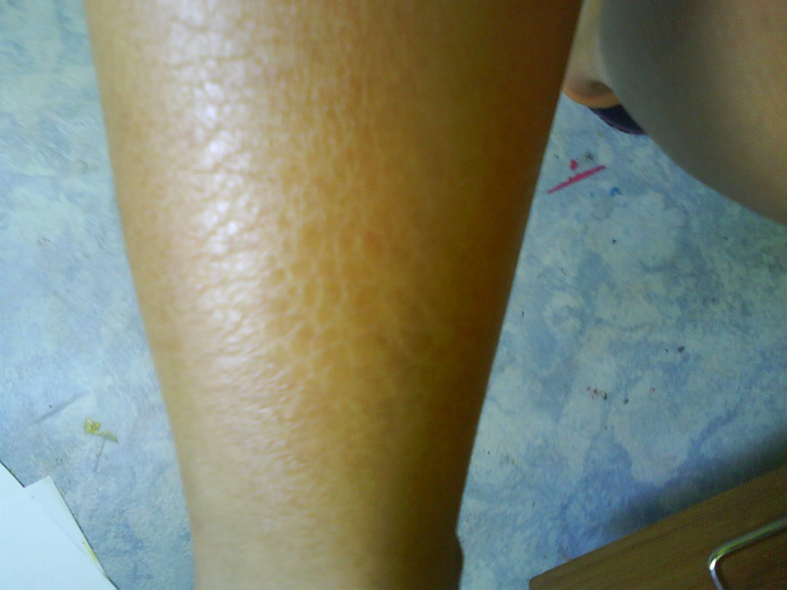 J ai la peau craquelée d un crocodile aide svp ! j en peut plus ... a213c8bc81b
