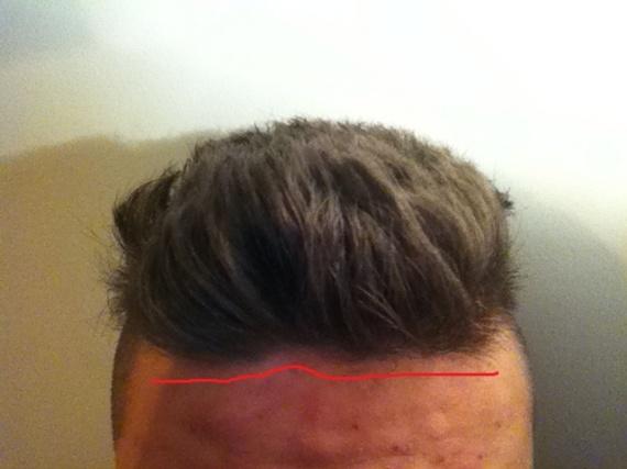 Petit trou dans les cheveux homme