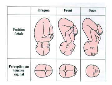 Accouchement Physio Et Présentation Tête De Bébé De Face Infos