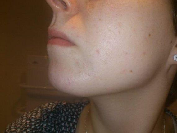 accutane nose bleeds