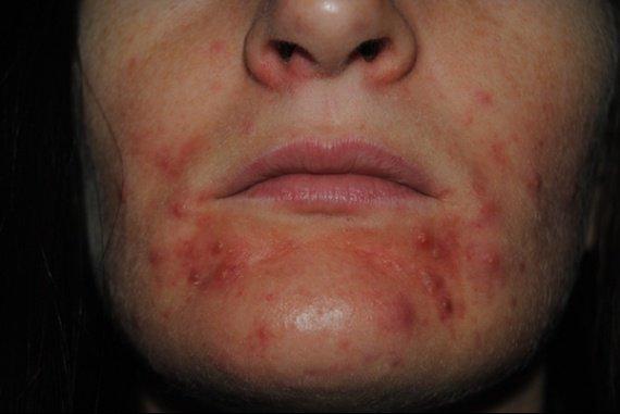 venir bout de cette acn e qui me d moralise acn psoriasis et probl mes de peau forum sant. Black Bedroom Furniture Sets. Home Design Ideas