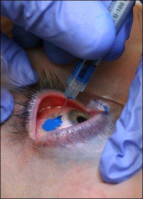 Tatouage oculaire