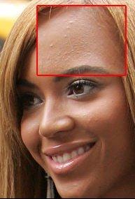 PHOTO-Matez-Beyonce-en-pleine-crise-d-acne_reference