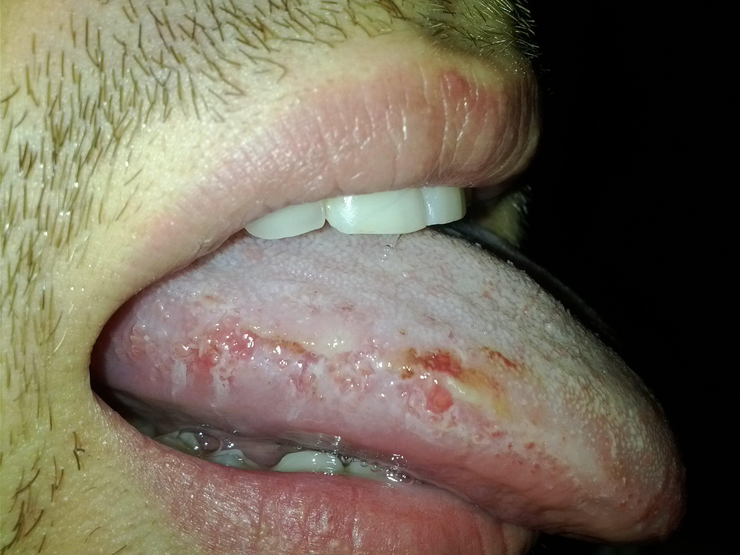 cancer de la langue photos photo