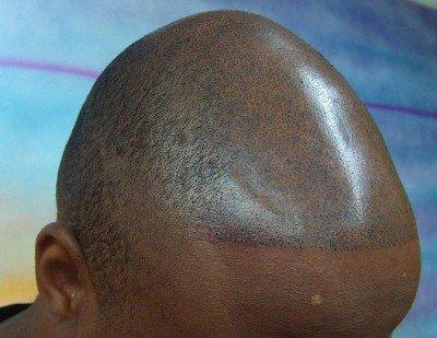 Maquilage Permanent Micro Pigmentation Calvitie Et Perte De