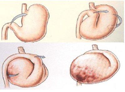 dilatation torsion de l'estomac