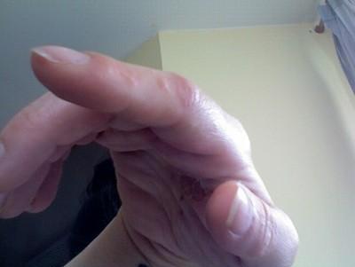 Paumes des mains trés chaude, avec des points rouges et ...