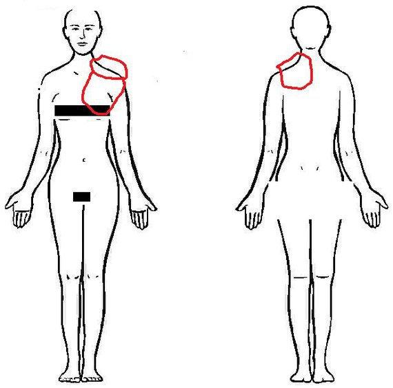La douleur tirant à droit au côté du dos à linclinaison