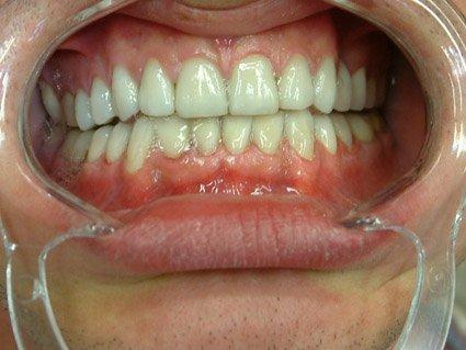 infection sous couronne dentaire mauvaise haleine