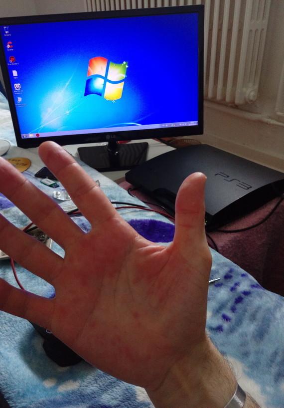 Mains ezcema contact allergique
