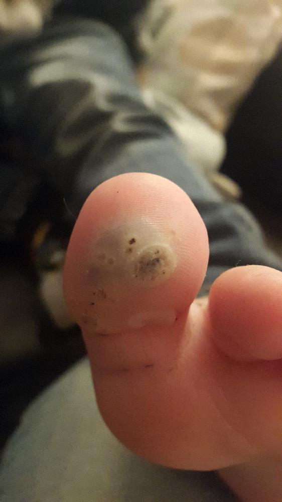 verrue pied enfant
