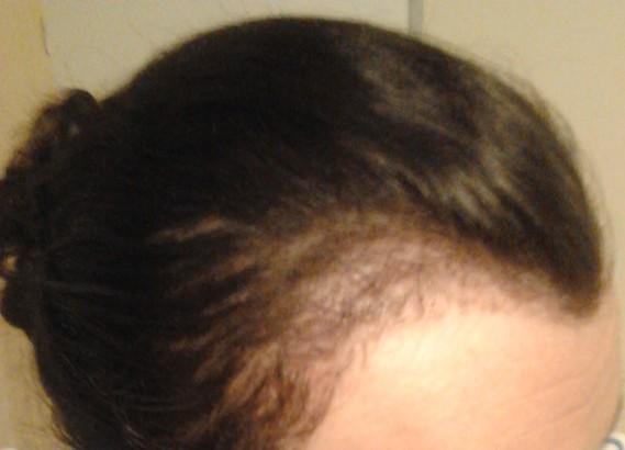 Perte cheveux femme devant