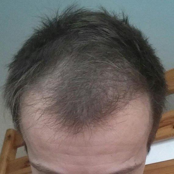 Minox 1 mois et 2 semaines