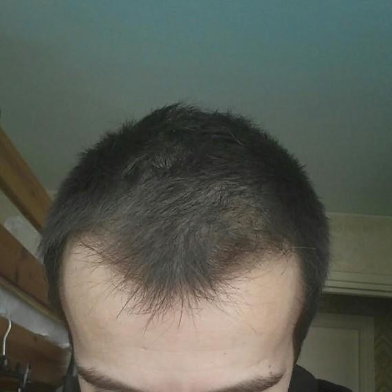 3 mois+ , cheveux court 2cm