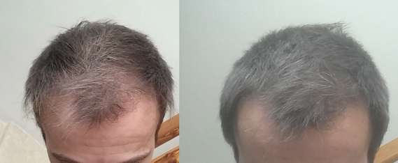 1 mois vs 4 mois même angle