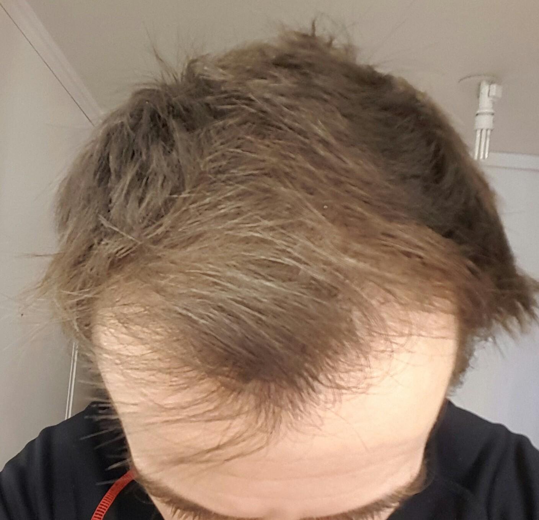 Combien de temps repousse cheveux minoxidil