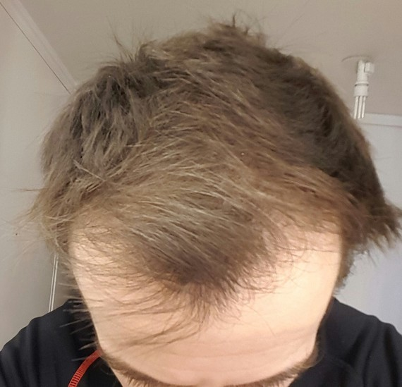 40 Jours de finiasteride avant tonte cheveux