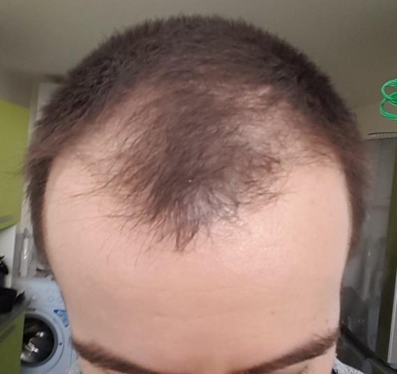 41 jours finasteride, après sabot 2cm