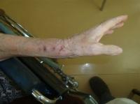 cicatrice:  4 fils enlevés à j+15