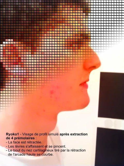 ryoko-profile-retraction-masque-img