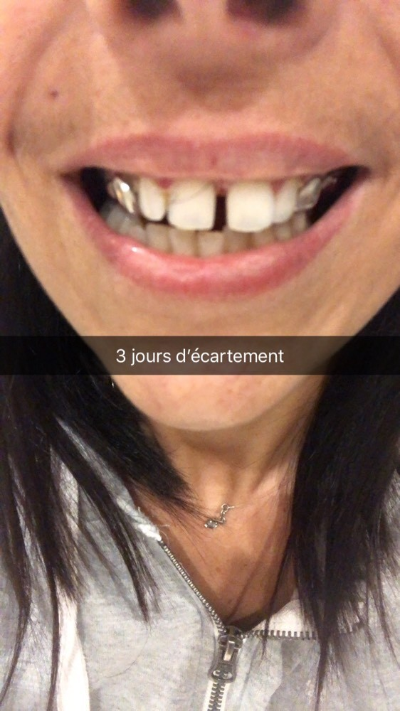 Temoignages Appareil Lingual Adulte Photos Problemes Dentaires